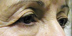 Eye Before Blepharoplasty