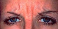 Botox Before