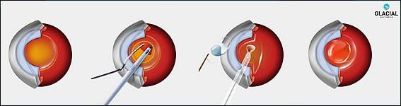 Cataract Surgery Illustrated