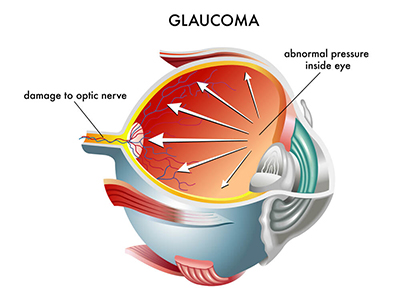 Chart showing an eye with glaucoma